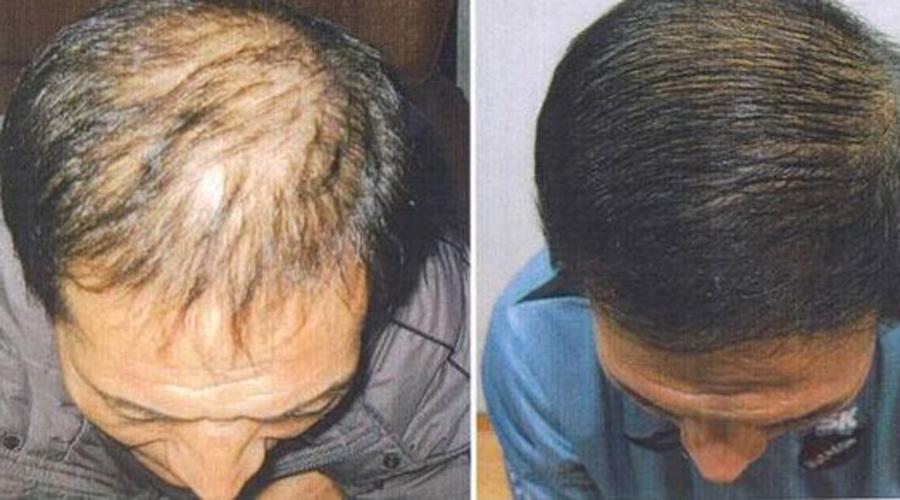 Скрытые способности обычного хозяйственного мыла выпадение волос